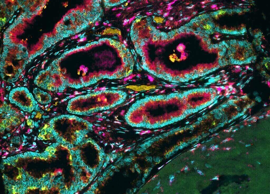 Karla Esbona (post-doc). Departamento de Biología Celular y Regenerativa, SMPH | Multiespectral microscopio de fluorescencia (sistema Vectra, Perkin-Elmer) Karla Esbona