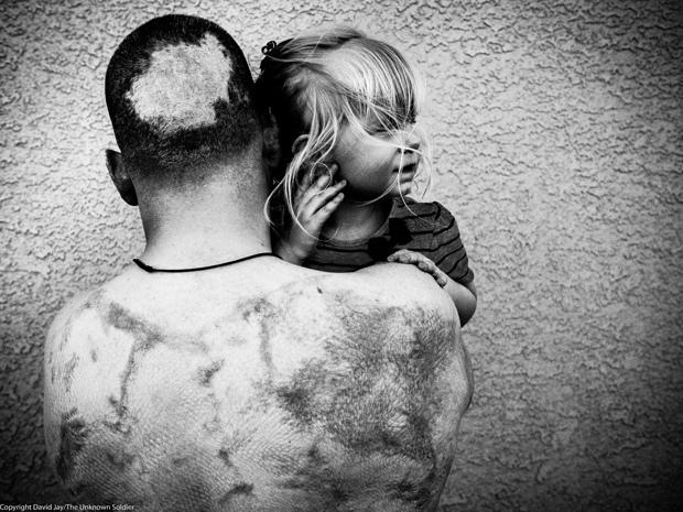 fotografía guerra